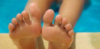 Odciski na stopach – przyczyny i leczenie