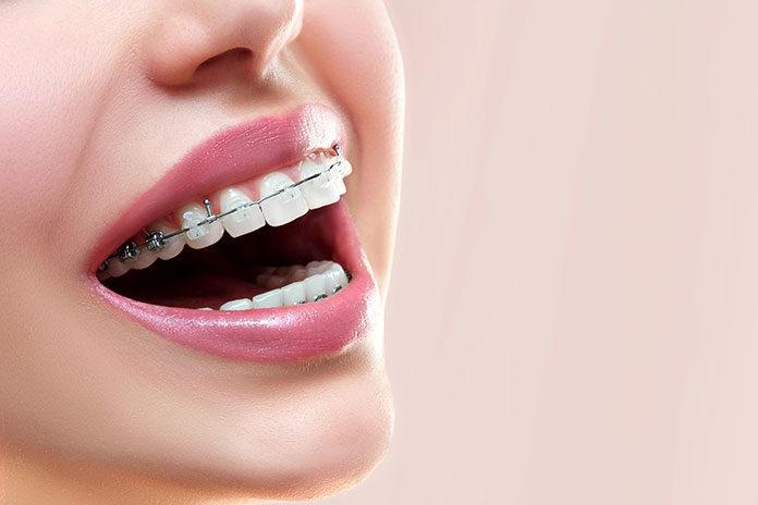 Fakty i mity na temat aparatu ortodontycznego