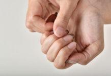 Jak leczyć łuszczycę paznokci
